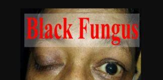 Black Fungus Death Reports in Sri Lanka